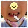 【育児5歳】1本目の乳歯抜けました