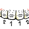 歯列矯正調整4回目〜day152〜