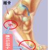 足底筋膜炎!?