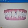 歯科矯正インビザラインに申し込んだ
