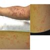 症例78:急激に全身に発疹と発熱が出現した7歳男児(Am J Emerg Med. 2021 Jan;39:254.e5-254.e7.)