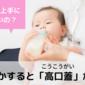 【生後2か月】ミルクを飲まない赤ちゃん、原因は「高口蓋」でした
