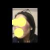 美肌への道⑪ ユークロマプラス18日目