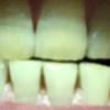歯が白くなる歯磨きを使ってみる アパガード プレミオ プレミアムタイプ  11日目
