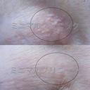 汗管腫(かんかんしゅ).エクリン汗嚢腫(エクリンかんのうしゅ).稗粒腫(はいりゅうしゅ.ひりゅうしゅ)レーザー治療