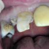 齲蝕による歯牙欠損のほとんどはレジン充填でなんとかなると思ってます