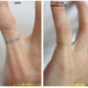 指のリング自彫り