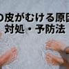 【足の皮がむけるのはなぜ?原因と覚えておきたい3つの対処・予防法】