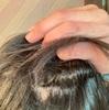 【脂漏性皮膚炎】頭皮がかゆいというより痛いレベル&ステロイド注射6回目!
