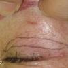 皮膚のたるみが多い眼瞼下垂の治療  挙筋腱膜前転とたるみとり の続き。 80代女性