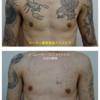 胸から両肩の広範囲タトゥーを薄くしています