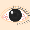 目の充血・出血