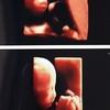 中期胎児ドックと性別判定