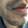 【毛30】ヒゲ脱毛のヤグレーザーの痛み、脱毛効果と経過観察(写真あり)@ゴリラクリニック銀座