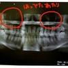 つらい蓄膿症は歯科治療ですぐ治るよ?!