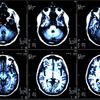 機械学習 脳3D画像を1000倍速く比較