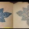 圧倒的症例数!ピコレーザー(エンライトン)でタトゥー除去をしています。 2回治療後です。2色。