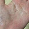 三十路女の卵巣嚢腫闘病記~番外編~手相で見る病気