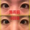 【画像つき:6回目】エヴァーグレースの目元ケアコースで、目の下のクマはどれだけ改善されるか検証!