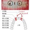 【インビザライン矯正中】矯正前の歯(前歯の隙間)の状態について話す