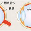 強度近視の人は要注意。網膜剥離と飛蚊症の違いは?