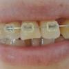 【歯列矯正から63日目】テンション低めです。