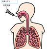 肺がんの診断