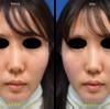 頬の位置を戻すと若返る頬のヒアルロン酸注入