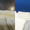 ICBのサマージャケットのえり黄変の復元