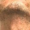 【髭脱毛開始から1年経過】レーザー髭脱毛の効果と東京のおすすめクリニック