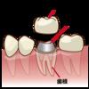 どの歯が保険適応で白い被せものに出来るの?
