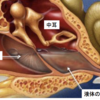 小児科医が語る滲出性中耳炎のまとめ