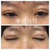美容整形で瞼を二重にした話②埋没法3点留、手術当日。