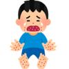 「手足口病」の経過と保育園