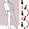 主訴:歩行障害の鑑別