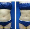 腹部の脂肪吸引をしました。術後1ヶ月目です。