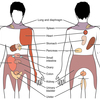 Referred Pain -関連痛-