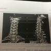 中枢性めまいに対する椎骨脳底システムのCTアンギオ