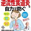 【逆流性食道炎】鼻から内視鏡検査とその流れ