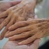 肌の老化現象は加齢じゃなかった!?8割が紫外線という恐怖