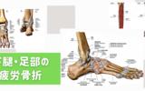 下腿・足部の疲労骨折