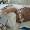 【三女】肺動脈絞扼術後15日目、泣いて催促した後は。