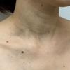 多発した首イボ治療例②