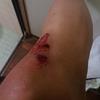 45歳のお兄さんが夜道ですっころんで、膝から流す血。