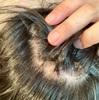 ステロイド注射10回目!紫外線照射!【円形脱毛症】