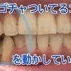 【インビザライン130日目】病院行って歯を削ってきたよ。