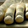 爪水虫の治療は薬の塗り方が重要