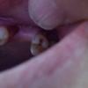 斜歯の視覚外部分