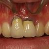 ブリッジの歯の歯茎再生治療例