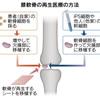 じじぃの「科学夜話・膝関節症・転ばぬ先の杖と予防?再生医療」